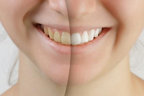 Избелване на зъби безопасно със сода или ягоди.